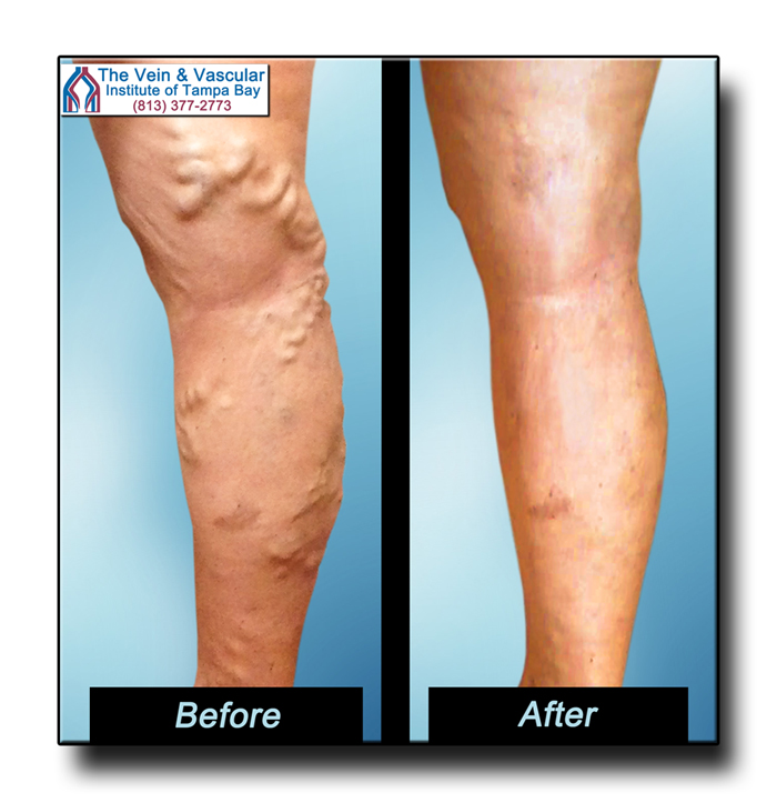 Before After Pictures Varicose Vein Removal Tampa
