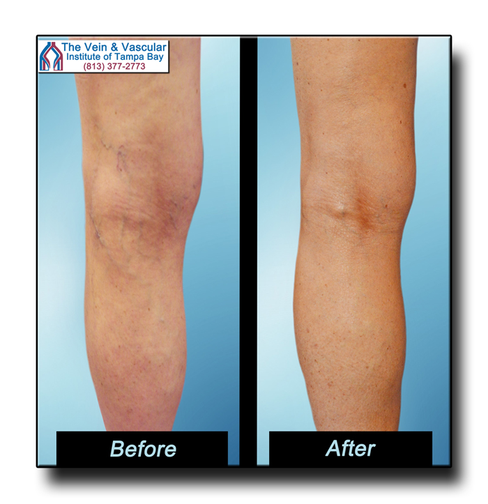 Tampa Spider Vein Treatment Patient Pictures - The Vein & Vascular Institute of Tampa Bay