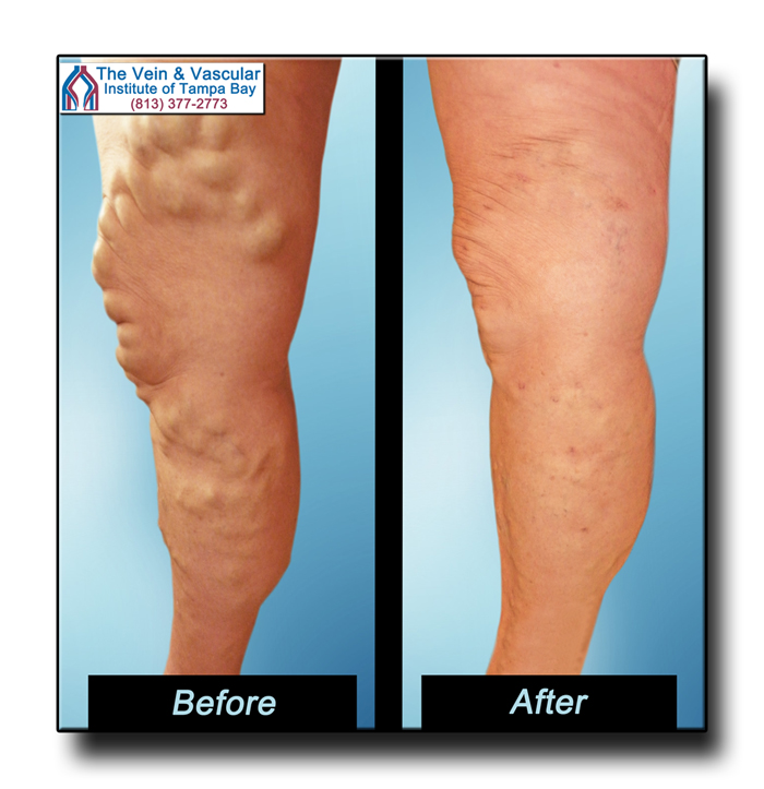 Tampa Varicose Vein Removal Patient Pictures - The Vein & Vascular Institute of Tampa Bay