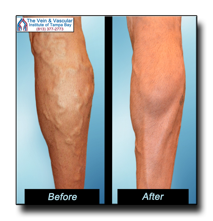 Tampa Varicose Veins Treatment Before and After Photos - The Vein & Vascular Institute of Tampa Bay