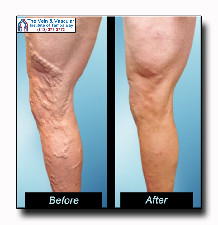 Varicose Veins Before and After Vein Treatment Photos in Tampa - The Vein and Vascular Institute of Tampa Bay