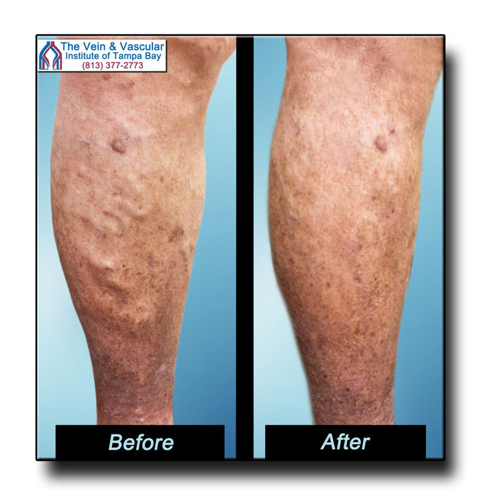 Vascular Surgery for Varicose Veins Before and After Pictures Tampa - The Vein and Vascular Institute of Tampa Bay