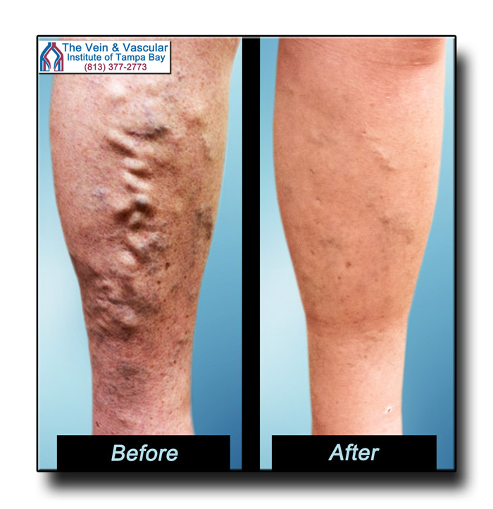 Vein Center Tampa Varicose Vein Surgery Before and After Pics - The Vein and Vascular Institute of Tampa Bay