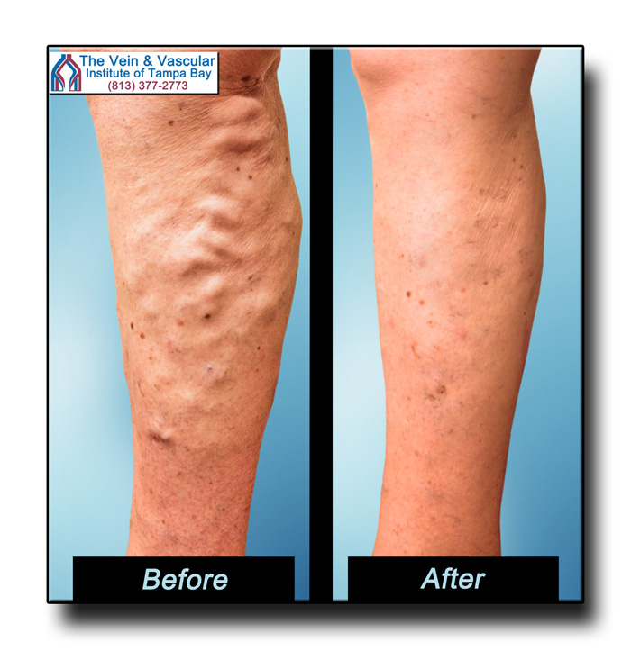 Vein Removal Surgery Tampa Pictures - The Vein & Vascular Institute of Tampa Bay