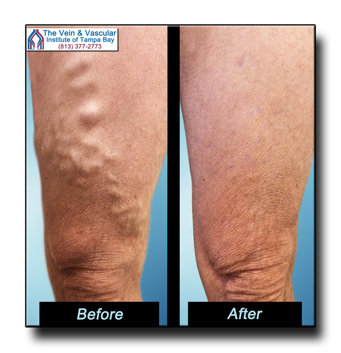 Vein Treatment Tampa Pictures - The Vein & Vascular Institute of Tampa Bay