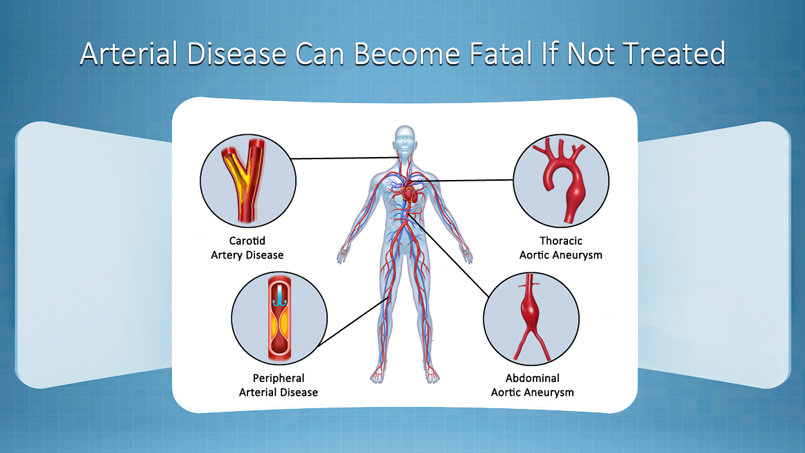 Arterial Disease Can Lead To Limb Loss Stroke If Left Untreated