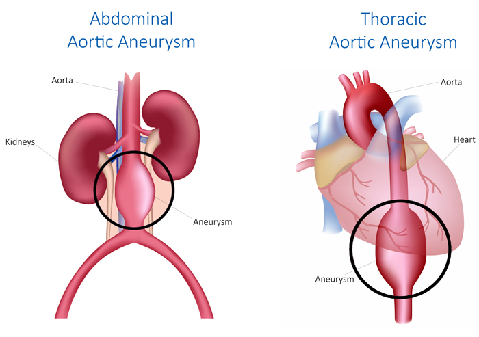 thoracic aortic aneurysm symptoms