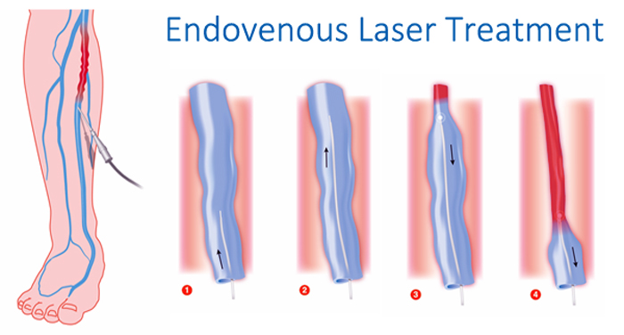 Endovenous Laser Treatment at The Vein and Vascular Institute of Tampa Florida