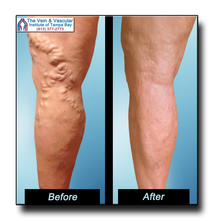 Pictures of Legs After Varicose Vein Surgery Tampa
