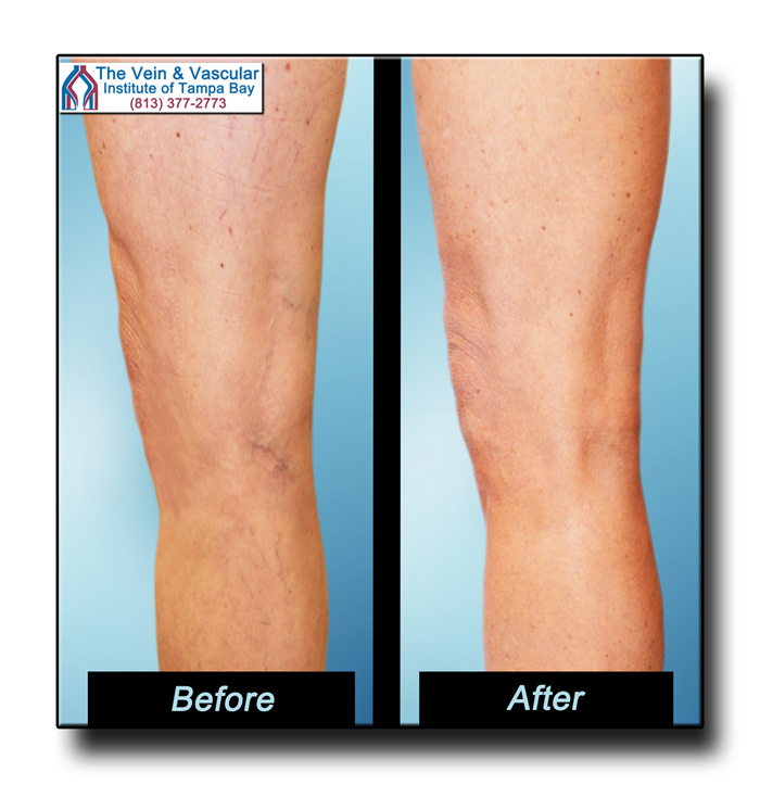 Spider Vein Removal Tampa Pictures - The Vein & Vascular Institute of Tampa Bay