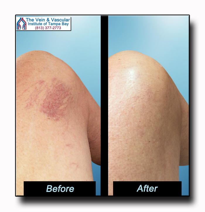 Spider Vein Treatment Before and After Tampa - The Vein and Vascular Institute of Tampa Bay