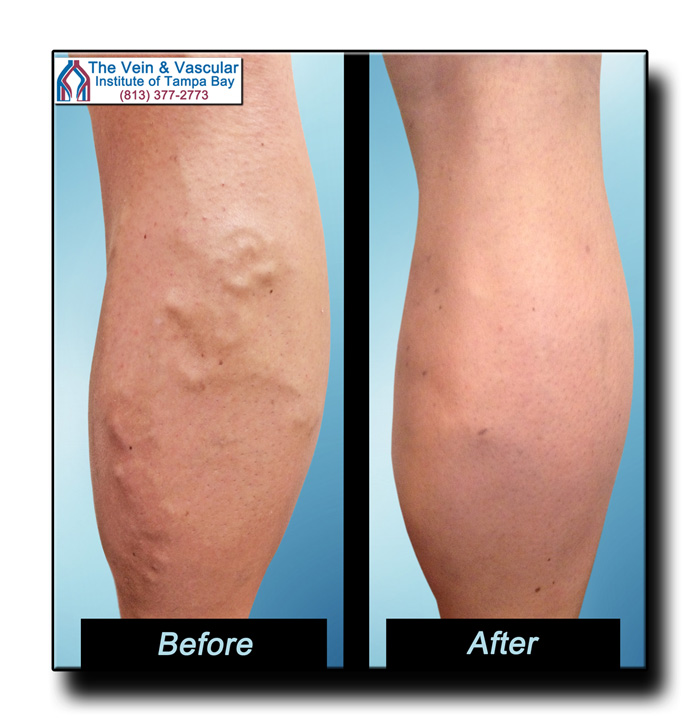 Tampa Vein Surgery Before and After Pictures - The Vein & Vascular Institute of Tampa Bay