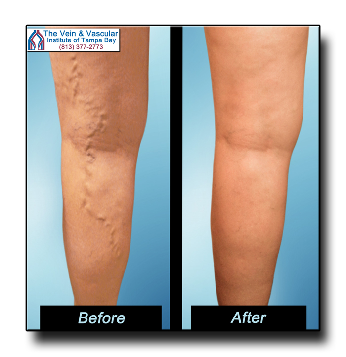 Varicose Vein Surgery in Tampa Great Results - The Vein & Vascular Institute of Tampa Bay