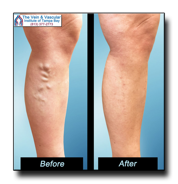 Varicose Vein Treatment in Tampa Pictures - The Vein and Vascular Institute of Tampa Bay