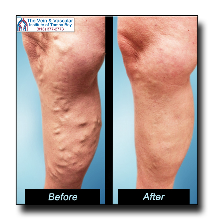 Vein Surgeon in Tampa - Patient Before and After Pictures - The Vein & Vascular Institute of Tampa Bay