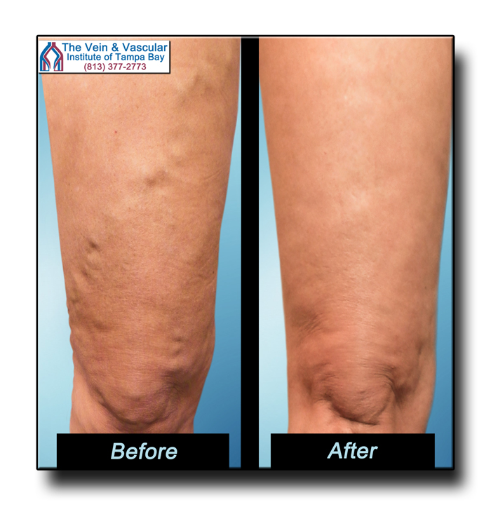 Vein Treatment in Tampa FL Review Pictures - The Vein & Vascular Institute of Tampa Bay