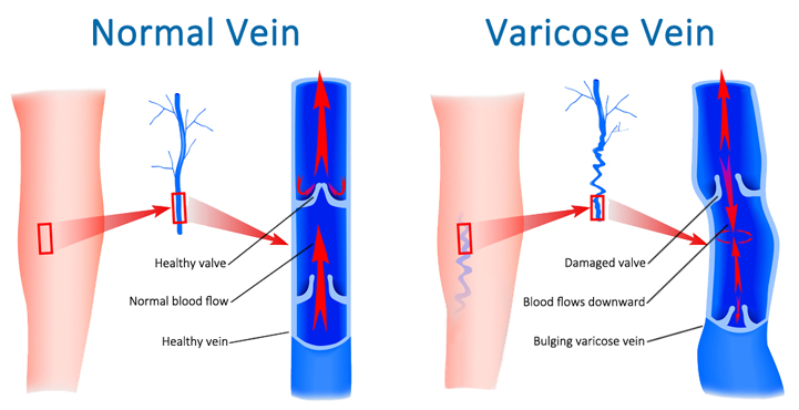 What causes varicose veins in legs