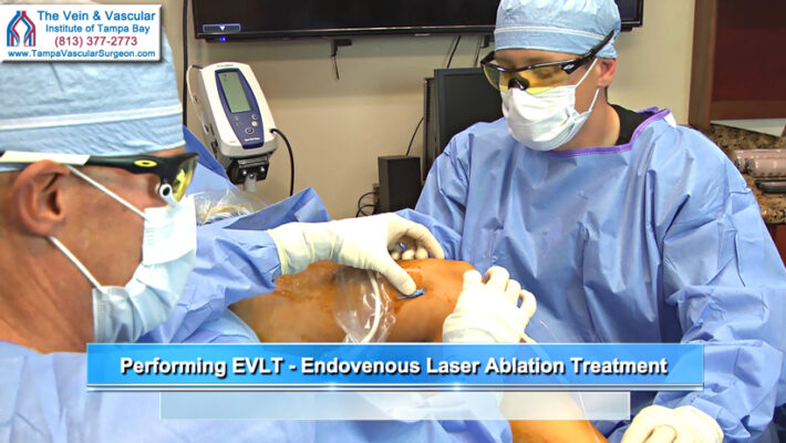 Vein Disease Treatment in Tampa FL EVLT Pre-Op Video