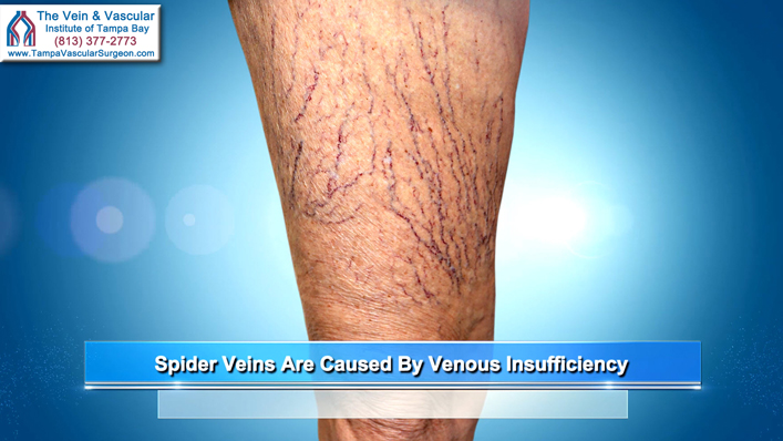 Spider Vein Treatment in Tampa Performed by The Best Spider Vein Doctor in Tampa