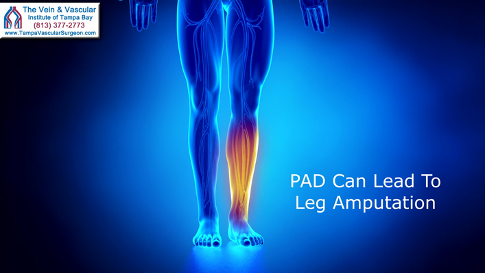 Peripheral Artery Disease Treatment in Tampa Florida To Prevent Leg Amputation