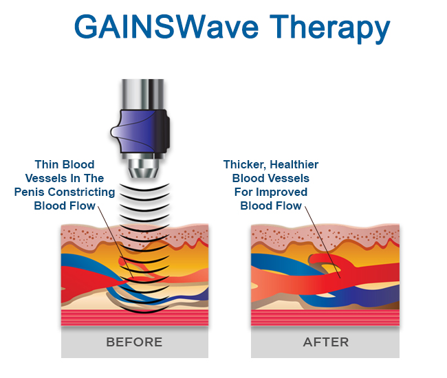 GAINSWave Therapy For ED Treatment Tampa